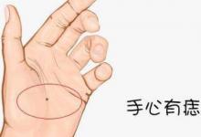 手相分析:一个人的手掌有痣代表的含义是什么,性格心思缜密