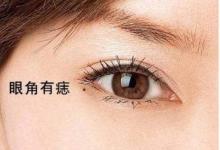 眼睛有痣的人面相分析