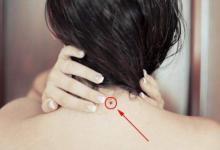 脖子有痣的女人解析大全