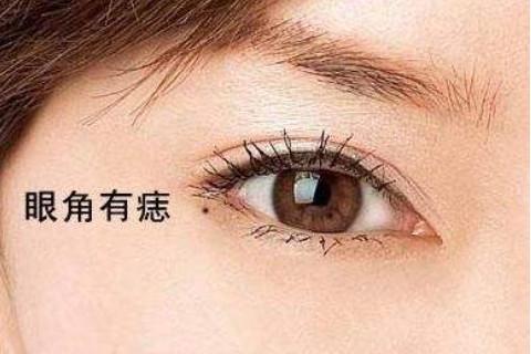 眼角有痣的人面相分析