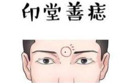 男人印堂有痣代表什么?
