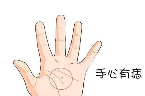 手掌有痣面相图解