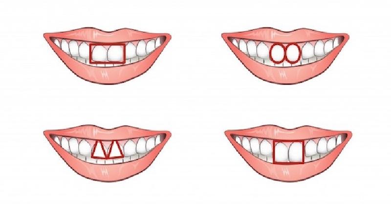 八字形门牙图片_门牙做烤瓷牙图片_门牙图片