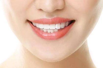 门牙了图片_门牙龋齿图片_八字形门牙图片