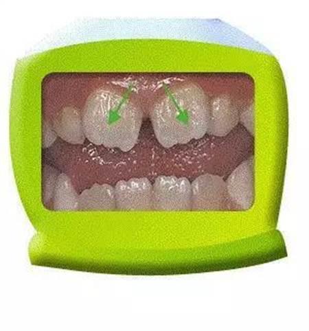 门牙做烤瓷牙图片_八字形门牙图片_门牙图片