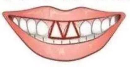 八字形门牙图片