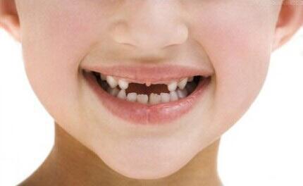 儿童换牙多久长新牙_孩子换牙八字牙_小孩换牙迟迟不长新牙