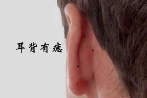 耳背有痣代表什么意思?