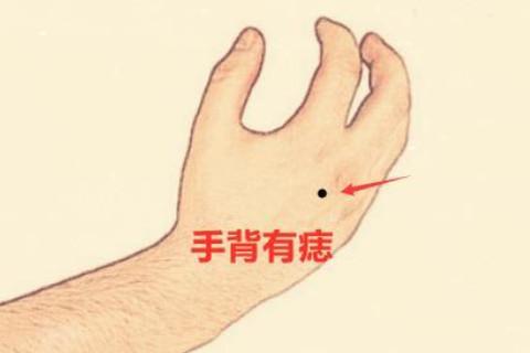 手臂有痣的女人帮夫运强吗?