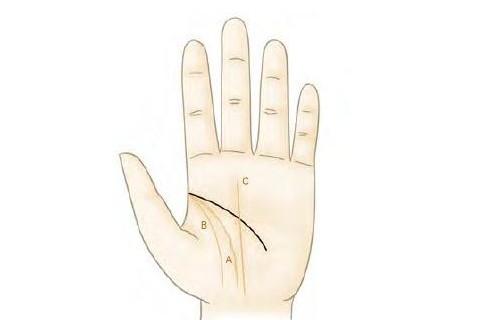 如何通过手相看身体健康