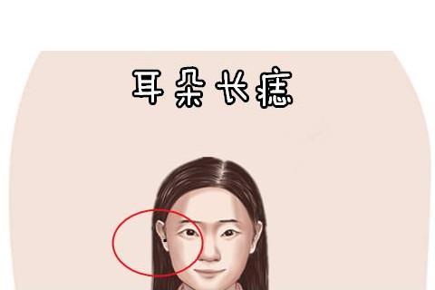 女人右耳垂有痣运势分析
