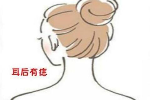耳朵后面有痣代表什么?
