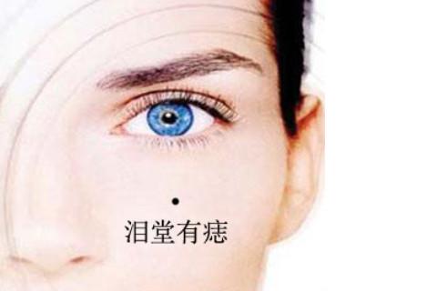 女人右眼下有痣命运分析