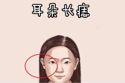 女人耳朵长痣说明了什么?
